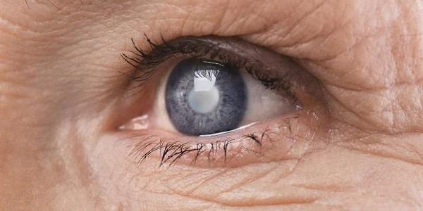 Bệnh khô mắt, đục thủy tinh thể ở người già