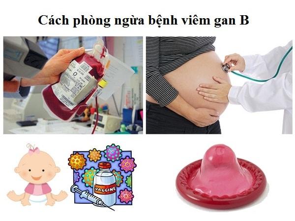 benh-viem-gan-B-co-lay-khong-cach-phong-ngua-benh