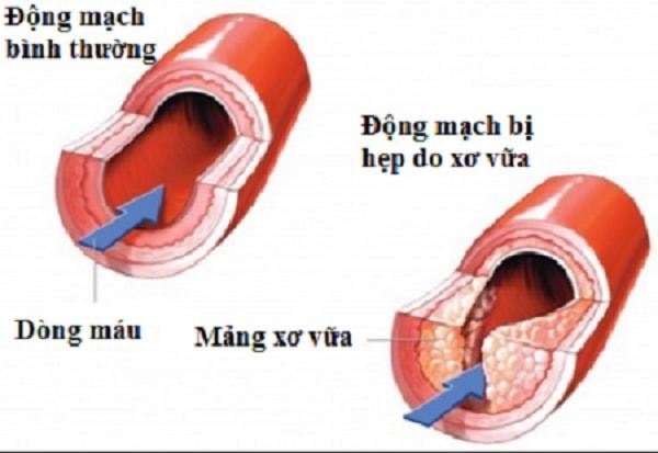 cách phòng ngừa bệnh xơ vữa động mạch 1