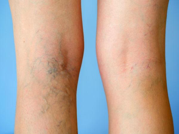 Giãn tĩnh mạch chân là gì? Dấu hiệu tác hại và cách phòng ngừa 2