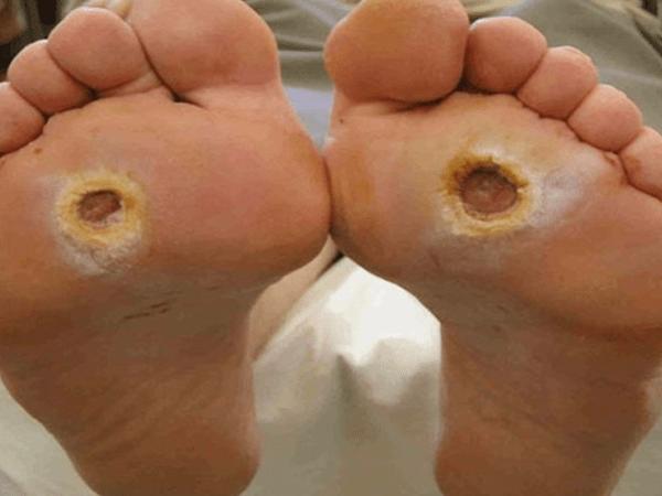 Giãn tĩnh mạch chân là gì? Dấu hiệu tác hại và cách phòng ngừa 4