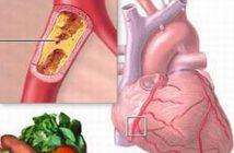 Hướng dẫn điều trị bệnh tim mạch với thuốc Coversyl